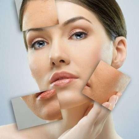 Laser dla skóry