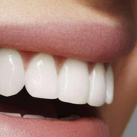 Zęby tego nie lubią