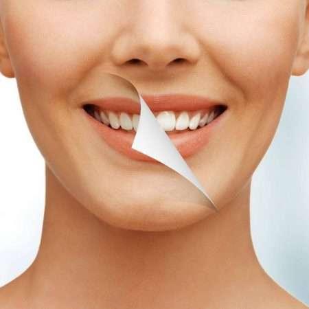 Jak dbać o biały uśmiech?
