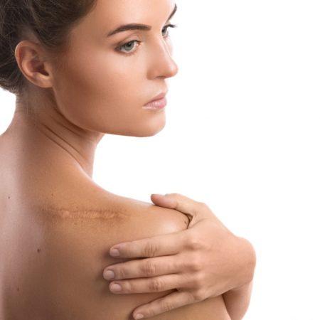 Leczenie blizn na twarzy i ciele