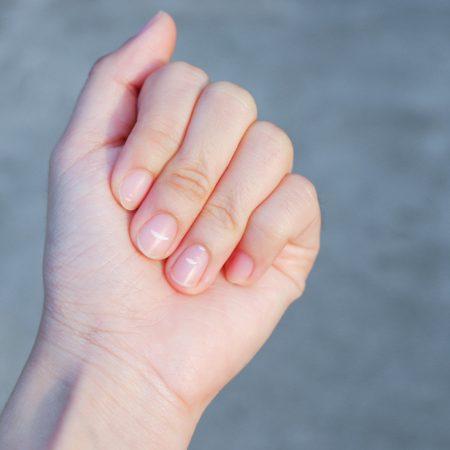 Bruzdy i plamki na paznokciach – jak się ich pozbyć?