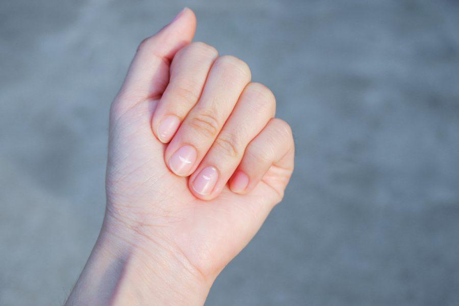 plamki na paznokciach